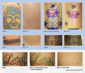 Astanza Trinity - Laser Manufacturer Before and After Stock Images