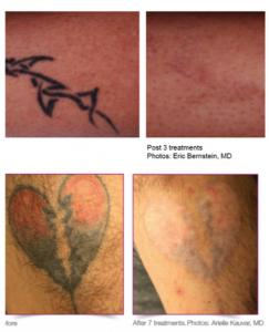 Best laser tattoo removal clinic sydney cbd think again for Tattoo removal sydney