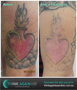 After 4 treatments at Think Again Laser Clinic  with the Quanta Q-Plus C