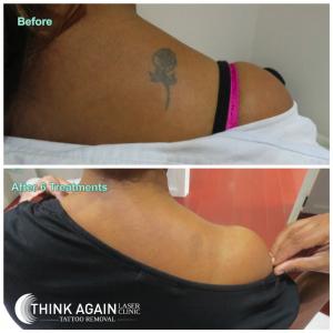 Laser Tattoo Removal Results - 6 Treatments. Tattoo Removal Guarantee. Tattoo Removal Sydney.