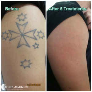 Our results at Think Again Laser Clinic after only 5 treatments.