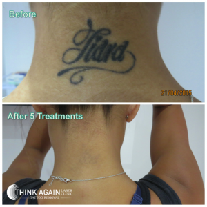 Before and After - By Think Again Laser Clinic