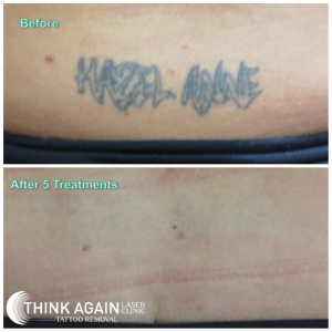 Laser Tattoo Removal Results at Think Again Laser Clinic; Best tattoo removal sydney