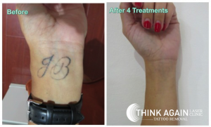 Are your tattoos affecting your first impressions in the for Qualifications for tattoo removal