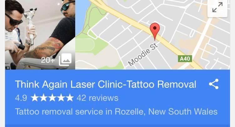Sydneys best tattoo removal Think Again