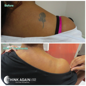 Laser Tattoo Removal Results - 6 Treatments. Tattoo Removal Guarantee. Tattoo Removal Sydney.