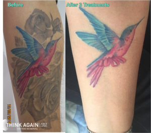 Laser Tattoo Removal Results at Think Again Laser Clinic - Best tattoo removal sydney