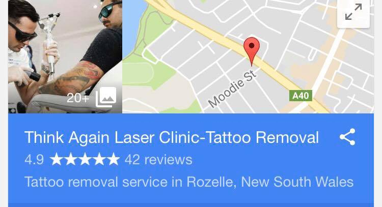 Sydney Laser Tattoo Removal