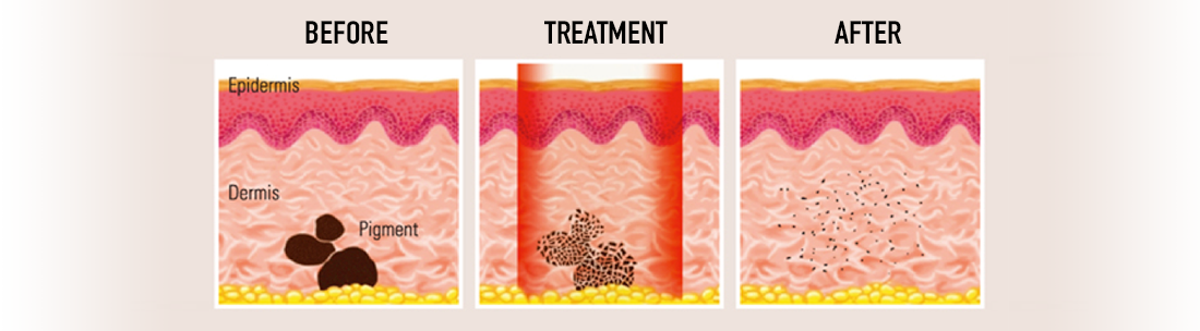 Tattoo Removal process with most advanced laser system in Sydney