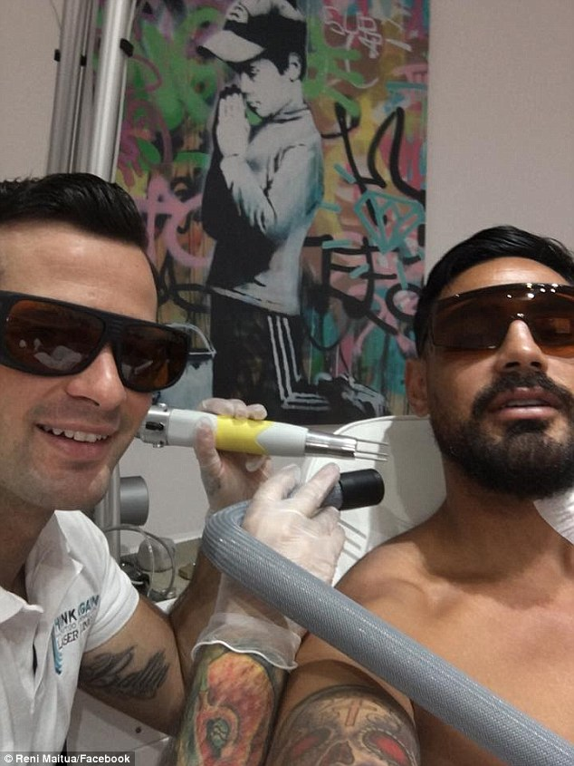 reni maitua getting his tattoo removal treatment