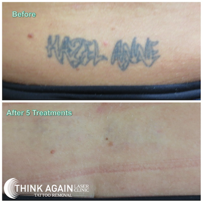 tattoo removal after five sessions
