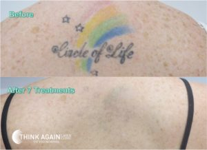 full colour tattoo removal