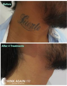 neck tattoo removal after four sessions