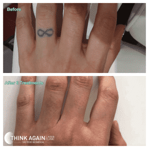 before and after 6 laser tattoo removal treatments on black finger tattoo at Think Again Laser Clinic Sydney