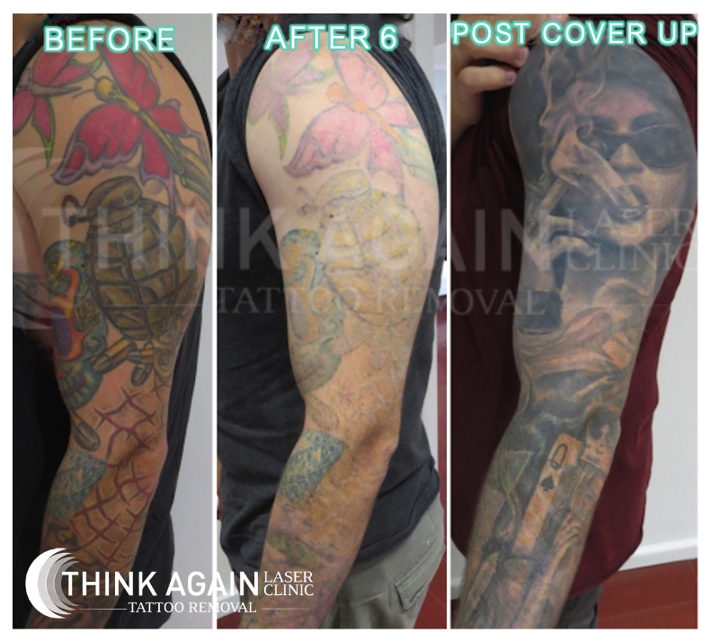 Tattoo Removal Results in Sydney - Before and After Pics