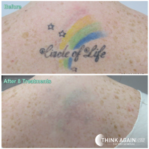 before-and-after-8-laser-tattoo-removal-treatments-on-colourful-rainbow-tattoo-upper-back
