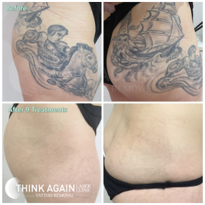 before and after 9 laser tattoo removal treatments on LARGE BLACK tattoo removal at Think Again Laser Clinic Sydney. Rozelle and Miranda