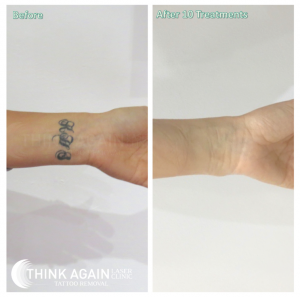 Black wrist tattoo after 10 laser tattoo removal treatments at Think Again Laser Clinic Sydney. Laser Tattoo Removal Rozelle. Laser Tattoo Removal Miranda