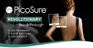 Cynosure PicoSure faster Tattoo Removal guaranteed