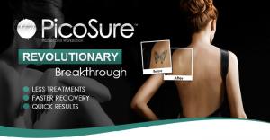 Cynosure PicoSure faster Tattoo Removal guaranteed
