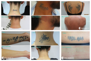 Best sydney laser tattoo removal results at Think Again Laser Clinic Sydney