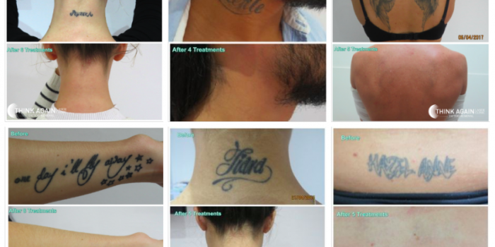 What I Have Learned After More Than 8500 Tattoo Removal Treatments-  Mike Anderson
