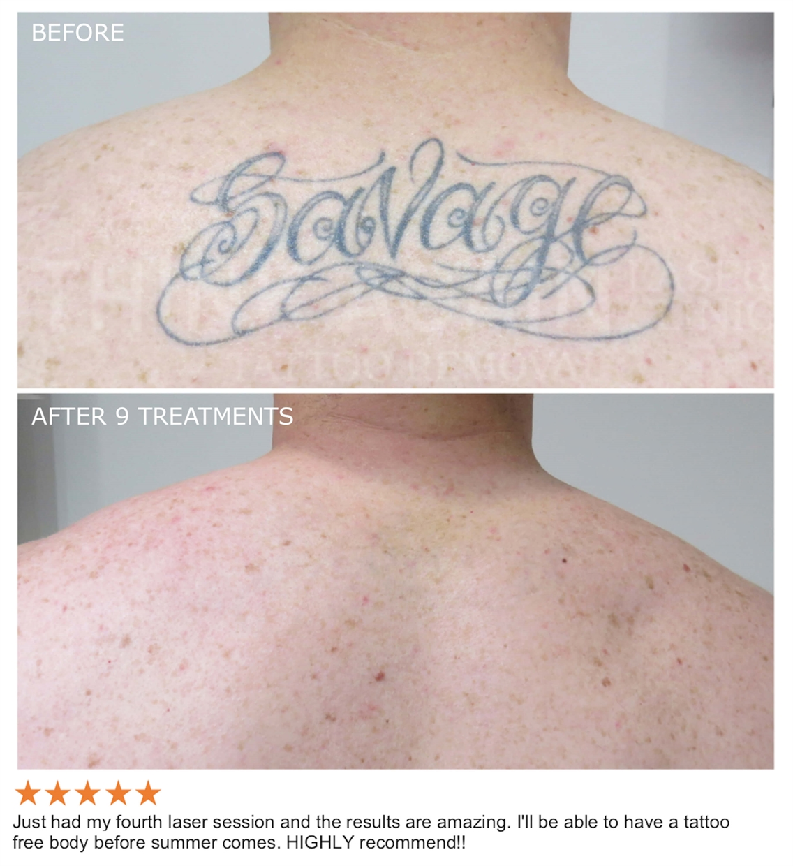 Laser Tattoo Removal Sydney - The #1 Rated Tattoo Removal Clinic